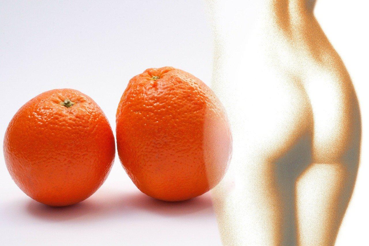 cellulite - buccia arancia